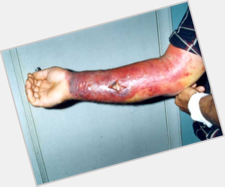 anthrax disease 1.jpg